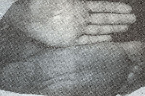 Болезни наподобие псориаза