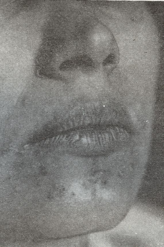 Сифилид фото