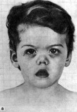 Marshall Syndrome | Special Needs Encyclopedia | Pinterest ...