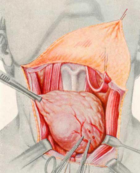 операция на щитовидке цена бруса под