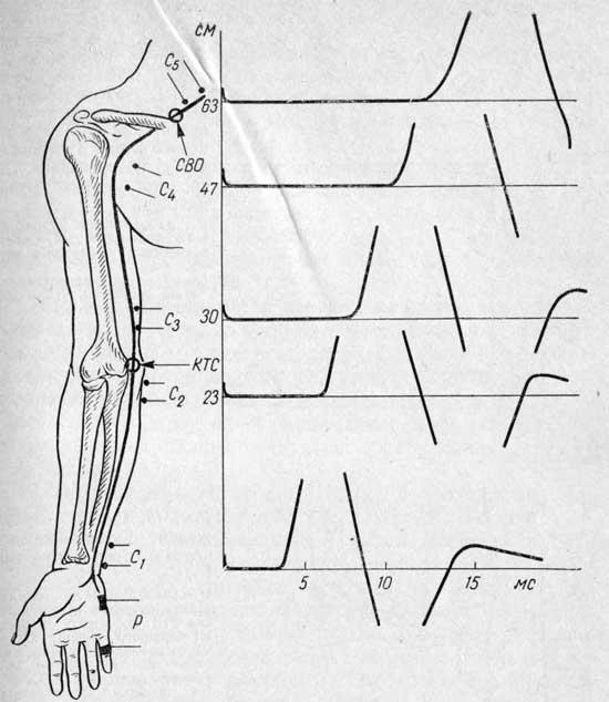 Схема расположения локтевого