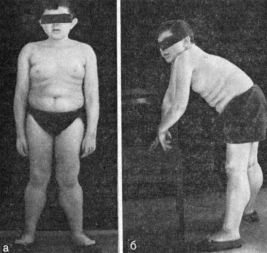 генетическое заболевание мышц и суставов