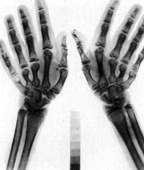 Рентгенограмма кистей рук больной 14 лет