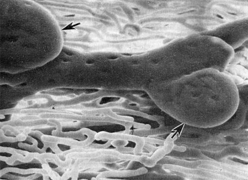 Слепые выросты (указаны стрелками) по ходу лимфатического микрососуда