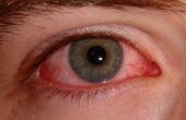 Причины покраснения глаз: полезная информация для каждого