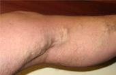 Минифлебэктомия — надежный метод борьбы с варикозом