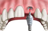Изготовление имплантов для зубов: материалы и их особенности