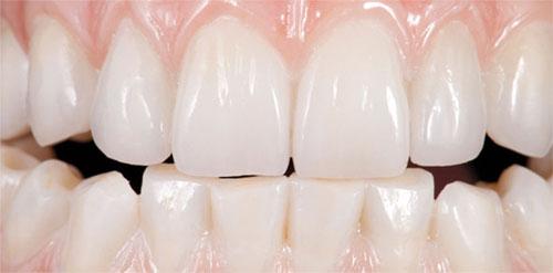 Зубные протезы из оксида циркония: качество, свойства и методики