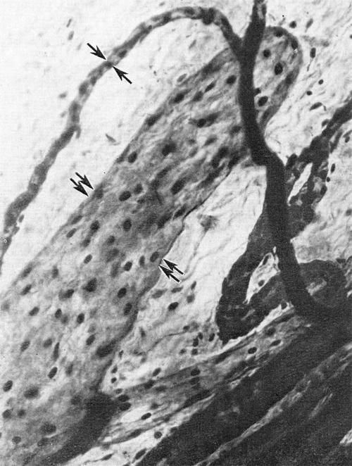 Диаметр лимфатических капилляров