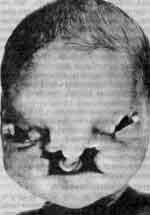 Срединной расщелины лица синдром (median cleft face syndrome)
