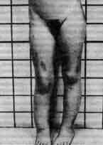 Фиброзная дисплазия полиостотическая (fibrous dysplasia polyostotic)