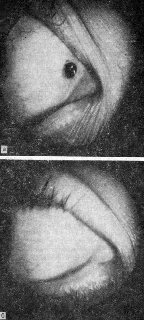 Меланома слезного мясца до (а) после (б) коагуляции аргоновым лазером