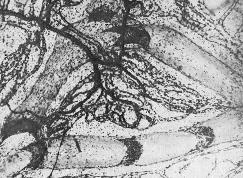Густота лимфатических сетей