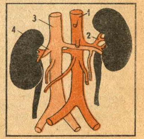 Форма, величина и положение почечной лоханки