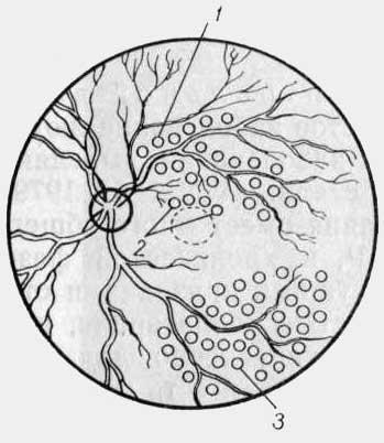 Тромбоз (окклюзия) центральной вены сетчатки и ее ветвей