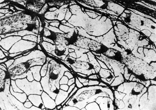 Увеличение числа ядер клеток в стенке первых лимфатических сосудов