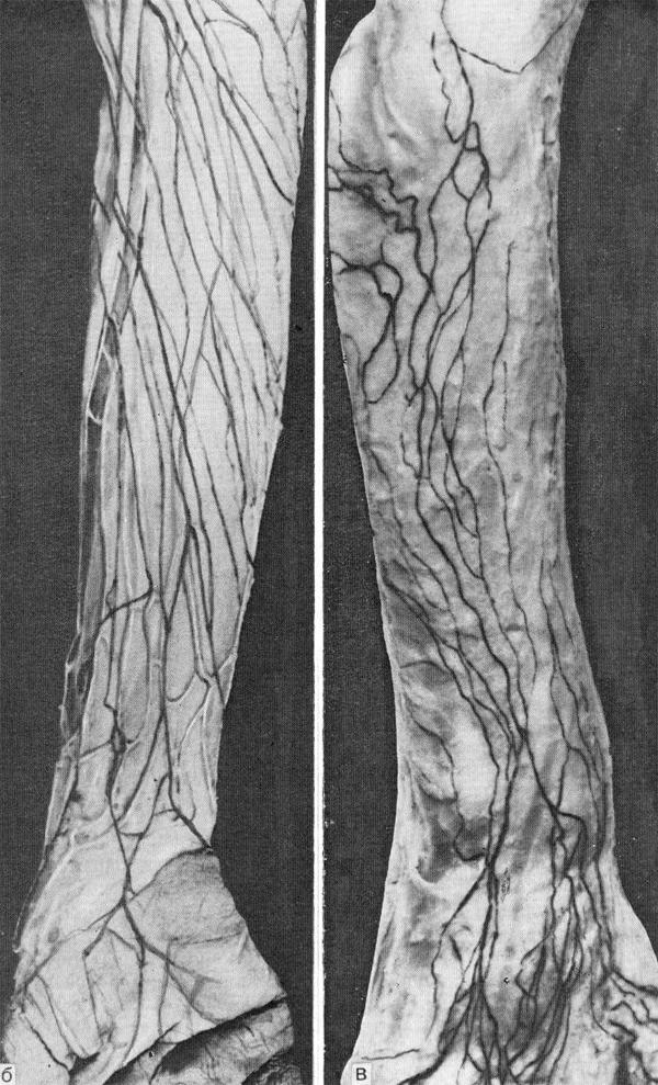 Строение лимфатической системы человека (б, в)