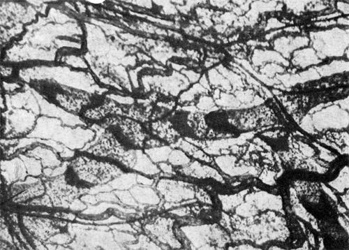Частота клапанов в собирающих лимфатических сосудах