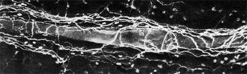 Точная дифференциация нервов относящихся к нервному аппарату лимфатических капилляров и сосудов