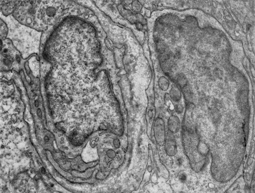 Строение капилляров в лимфатическом узле