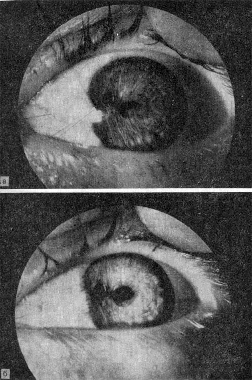 Использование эффекта уплотнения ткани для вмешательств на переднем отделе глаза
