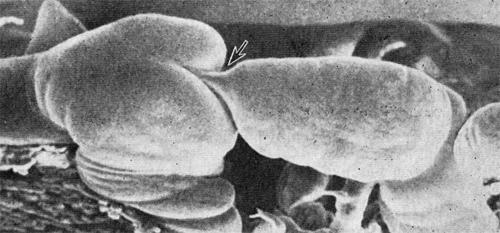 Гладкие мышцы лимфангиона