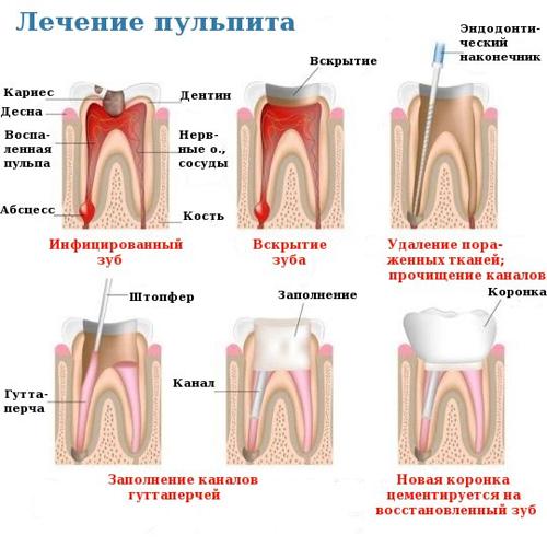 Причины и симптомы пульпита