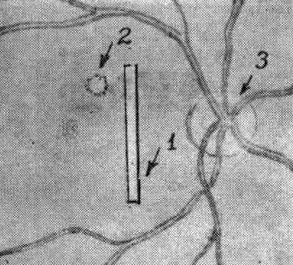 Картина, выявляемая флюоресцентной ангиографией при ЦСР