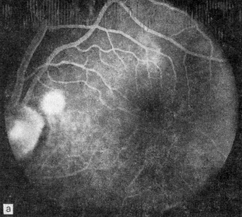 Классификация экссудативных макулодистрофий