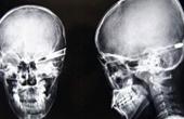 Чем могут быть вызваны головокружение и головная боль