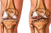 Артроз коленного сустава. Причины и лечение заболевания