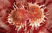 Современные методы борьбы с онокологическими заболеваниями
