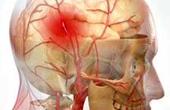 Вопросы реабилитации после инсульта