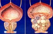 Причины возникновения рака простаты