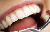 Заболевания зуба, как показания к удалению