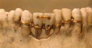 История протезирования зубов