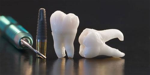 Восстановление зубного ряда за 1 день с технологией All-on-4!
