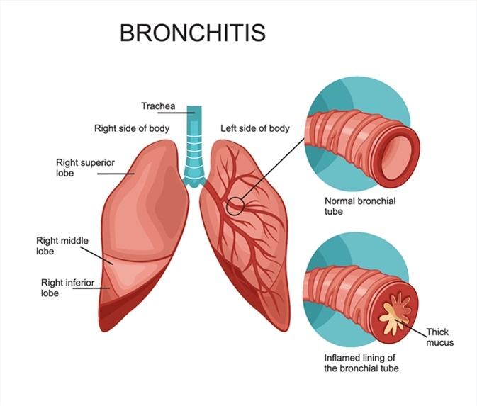 Хронический обструктивный бронхит как структурная патология бронхов