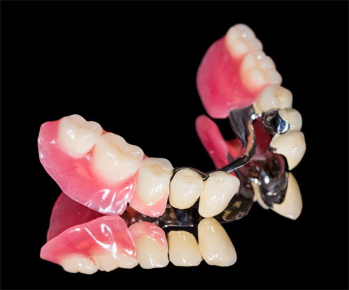 Сколько стоит протезирование зубов