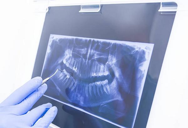 Самые популярные стоматологические услуги