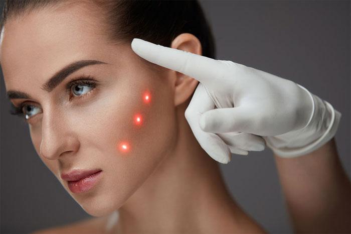 Как улучшить качество кожи с помощью лазерных технологий