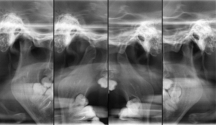 Зонограмма ВНЧС: назначение диагностического исследования