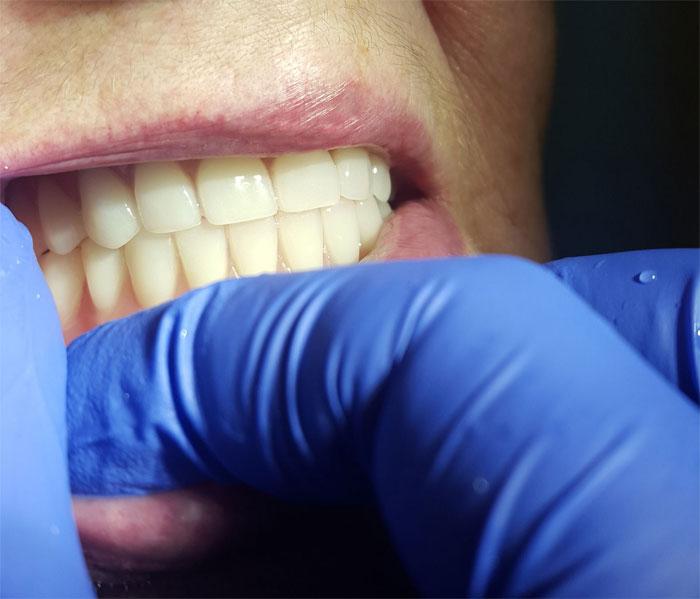 Зубные съемные протезы