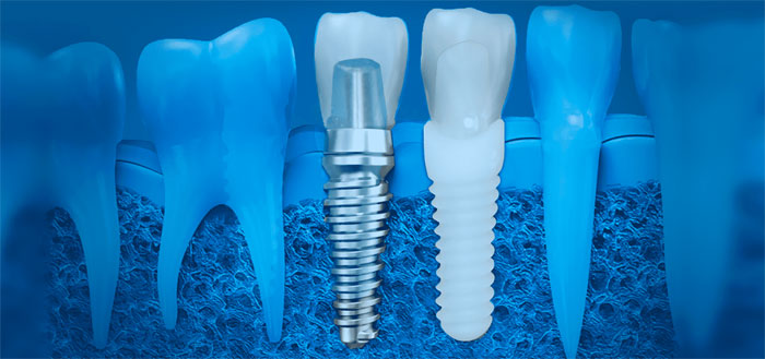 Услуги современной стоматологии