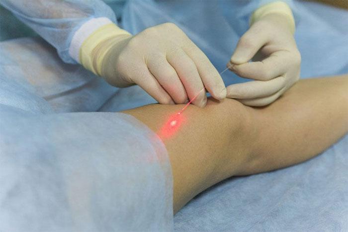 Минифлебэктомия - особенности процедуры