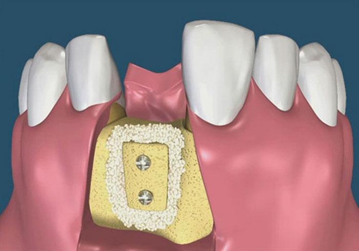 Костная пластика зубов перед имплантацией