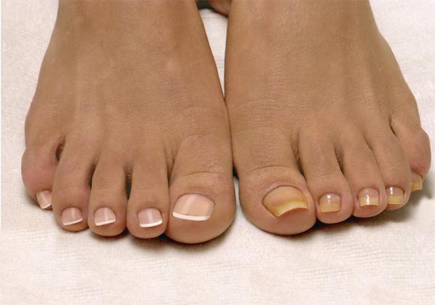 Грибок ногтей – причины, лечение, профилактика
