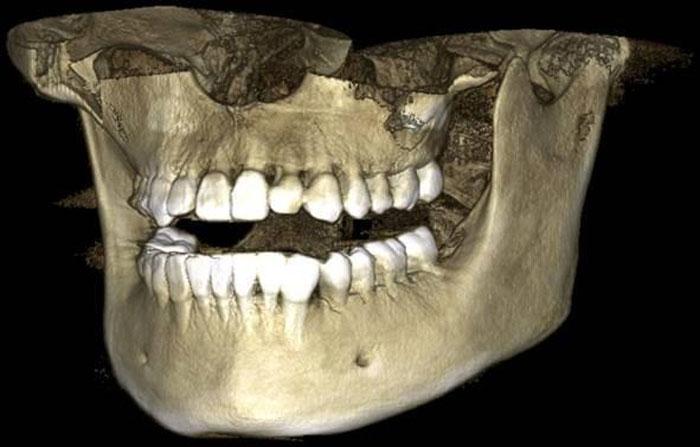 3D-снимки зубов