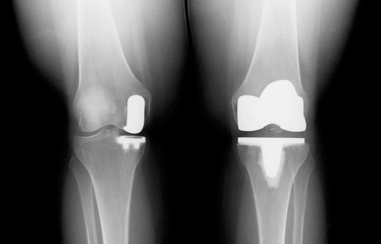Коленный протез с одним отделением: выбор, который делает разницу