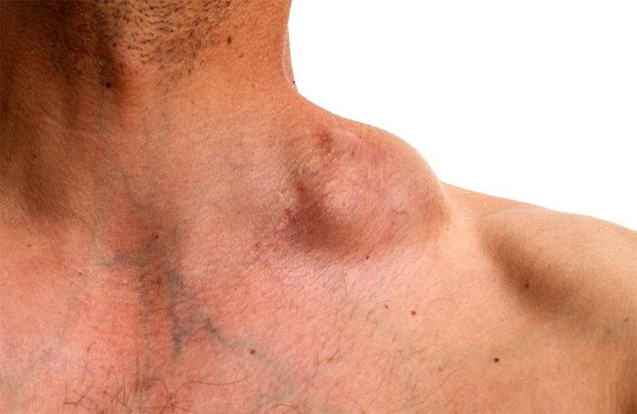 Неходжкинская лимфома: причины, симптомы, диагностика и лечение